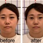 小顔整顔1回施術のbefore→afterです!